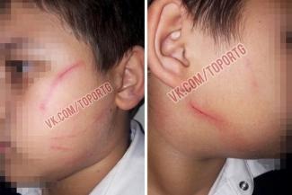 Школьные войны в Татарстане: директора обвиняют в том, что расцарапала лицо ученику, учительницу - что заклеила первоклашке рот скотчем