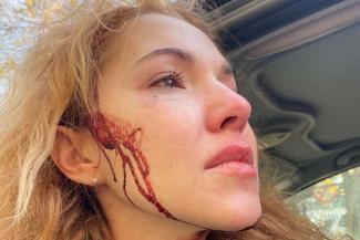 Казанская парикмахерша, которая сцепилась с охранником из-за парковки, считает, что государственная медиакорпорация организовала ей «адовую гнобежку»
