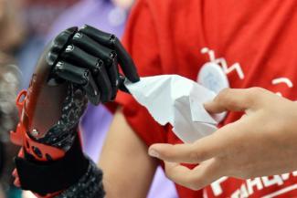 Студентке из Татарстана, которая лишилась руки, «распечатают» искусственную на 3D-принтере