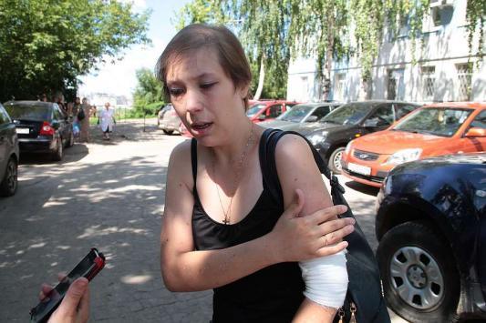 Пострадавшая в  казанском надземном переходе: «Судмедэксперты  не поверили, что я эту рану в лифте получила»