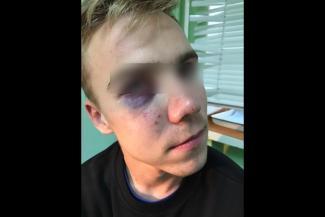 Очевидцы избиения подростка-инвалида у станции метро в Казани: «Он так кричал от боли, до сих пор в ушах этот крик!»