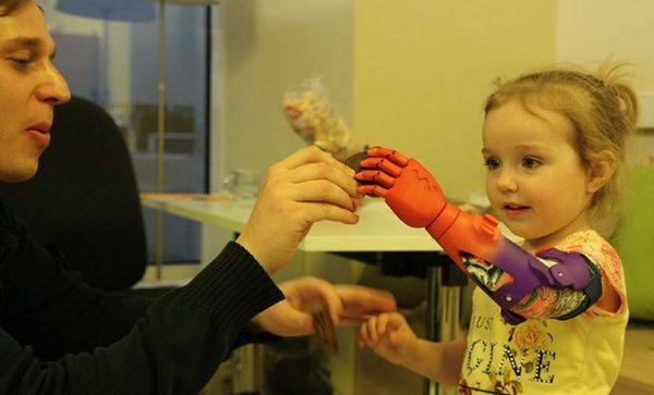 Студентке изНабережных Челнов распечатают новейшую руку на3D-принтере