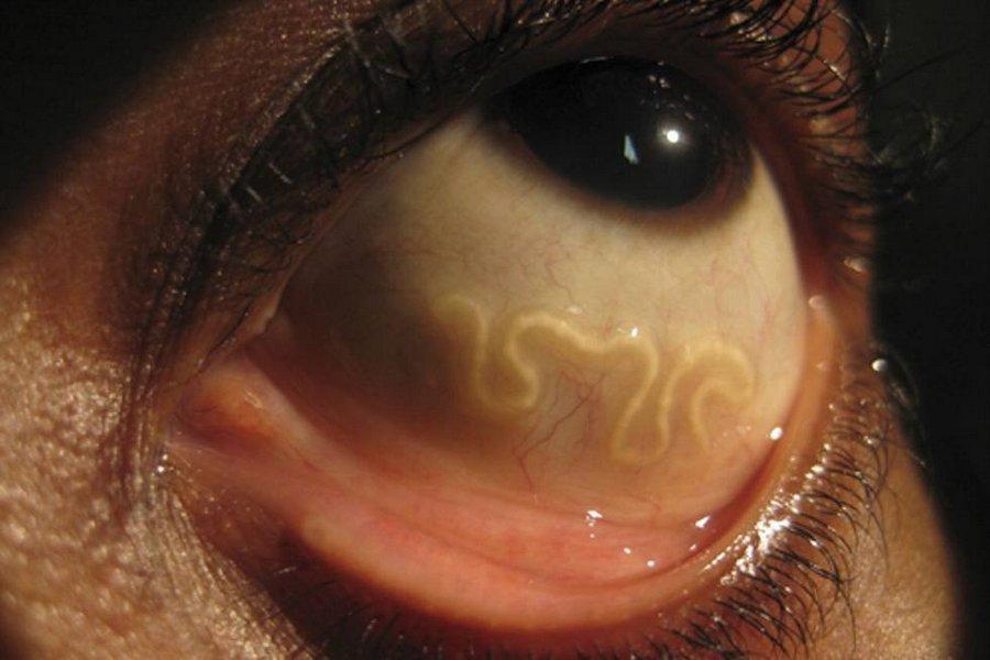 Глаз жителя Казани сразил тропический паразит